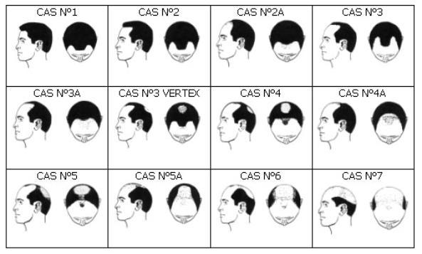 Les moyens pour les cheveux la meilleure société